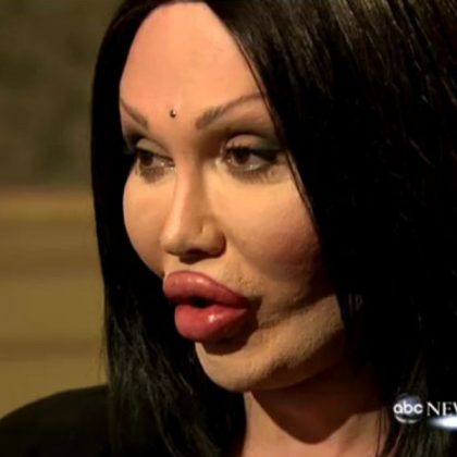 Pete Burns Oggi